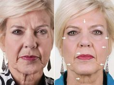 Before and after using the ageLOC technology.