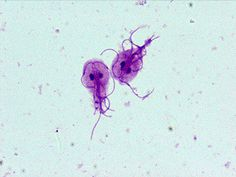 One of the more common parasitic organisms is Giardia lamblia. This parasite grows in the upper GI tract and produces greasy, smelly diarrhea.