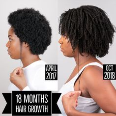 Experience fast natural hair growth on your 4 type natural hair with this hair growth remedy for black women who struggle to grow their natural hair long. Natural Hair Growth Remedies, Natural Hair Growth Tips, How To Grow Natural Hair, 4c Natural Hair, Natural Hair Journey, Natural Hair Styles, Long Hair Styles, Afro Hair Growth, Afro Hair Care