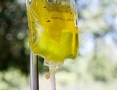 High Dose Intravenous Vitamin C Infusions - alternative medicine, naturopathic medicine treatments. Consider with cancer patients or general health.