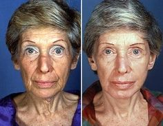 Facial Yoga Exercises For Gents And Ladies