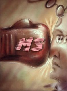 multiple sclerosis - Bing Images