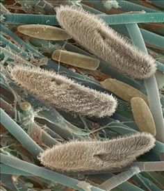 Paramecium - electron micrograph - They look furry! I don't know, that does not seem true to me?