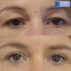 Blepharoplasty (Eyelid Surgery) at our London clinic - Please call 020 7486 6778 or visit our website for further information #eyelidsurgery #uppereyelidsurgery #blepharoplastyLondon #eyelidsurgeryLondon #uppereyelidsurgeryLondon #blepharoplastysurgeon #eyelidsurgeon #uppereyelidsurgeon #lowereyelidsurgeon #blepharoplastyresults #eyelidsurgeryresults #uppereyelidsurgeryresults #blepharoplastybeforeandafterphotos #eyelidsurgerybeforeandafterphotos #blepharoplastypatient #eyelidsurgerypatien Facial Cosmetic Surgery, Eyelid Surgery, Clinic, Eyebrows, How To Remove, Cosmetics, London, Website, Eyes