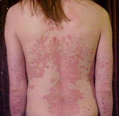 Psoriasis Revolution - Psoriasis Revolution - Psoriasis Treatment Cream REAL PEOPLE. REAL RESULTS 160,000  Psoriasis Free Customers - REAL PEOPLE. REAL RESULTS 160,000+ Psoriasis Free Customers