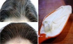 Get rid of your white/gray hair .To get rid of your white/gray hair you will need: Ingredients: .Other homemade remedies that can help you get rid of your white/gray hair Remedy For White Hair, Grey White Hair, Covering Gray Hair, Hair Loss, Hair Growth, Home Remedies, Natural Remedies, Whitening, Coconut Oil
