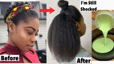 Your Hair Will Never Stop Growing After You Use This Treatment | Grow Long & Thick Hair