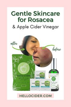 In this post you'll find out how one of our customers is using Hello Cider's Apple Cider Vinegar face toner and wipes to help with rosacea. #skincare #rosacea Natural Toner, All Natural Skin Care, Natural Health, Toner For Face, Skin Toner, Home Remedies For Skin, Health Remedies, Rosacea Remedies, Health And Wellness Quotes