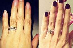 Women Are Getting Plastic Surgery On Their Hands For Their Engagement Ring Selfies