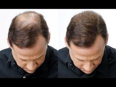 5 remedios Detén la caída del pelo