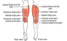 Hasil gambar untuk femur pain