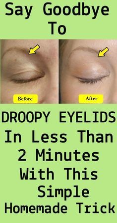 Droopy Eyelids Drooping eyelids are generally the result of ageing. However, many different factors can have an effect on their look. Once they arise, droopy eyelids may additionally stay the ident… Beauty Secrets, Diy Beauty, Beauty Skin, Health And Beauty, Beauty Care, Beauty 360, Beauty Killer, Star Beauty, Best Beauty Tips