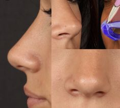 Things That You Need To Know When It Comes To Plastic Surgery. Reconstructive surgery is something that has been performed throughout the ages, but it has grown in popularity in recent times. Nose Plastic Surgery, Nose Surgery, Pretty Nose, Nose Reshaping, Rhinoplasty Surgery, Looks Pinterest, Small Nose, Nose Shapes, Cosmetic Procedures