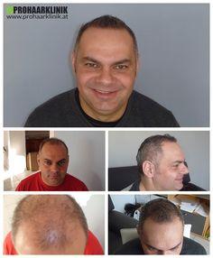 http://www.prohaarklinik.at/haartransplantation-vorher-nachher-bilder/  Haartransplantation in mehrere Zonen - PROHAARKLINIK  Herr Lencse hatte einen großen Haartransplantation Sitzung mit unserer Klinik, wo er mehr als 9000 Haare in den Zonen 1,2,3,4,5,6. Zwei Tage lang Behandlung machte diese Menschen viel glücklicher nach 1 Jahr. Das Ergebnis ist einfach hervorragend. Von PROHAARKLINIK durchgeführt.
