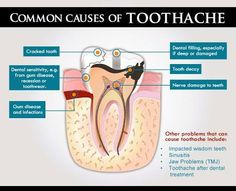 Common cause of #toothache.