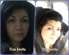 Selfie con Brote de Fibromialgia