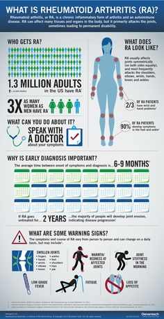 Afbeelding van http://www.gene.com/assets/frontend/img/content/stories-what-is-rheumatoid-athritis-infographic.png.
