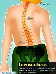 Levoscoliosis