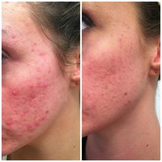 Here's Kathy's amazing before and after picture. This is with being on the Nerium AD product for 2 months.   www.youthsecrets.nerium.com