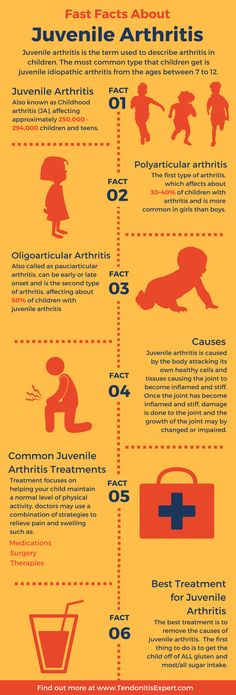 Infographic – Fast Facts About Juvenile Rheumatoid Arthritis www. Infographic – Fast Facts About Juvenile Rheumatoid Arthritis www. Juvenile Rheumatoid Arthritis, Yoga For Arthritis, Natural Remedies For Arthritis, Rheumatoid Arthritis Treatment, Knee Arthritis, Rheumatoid Arthritis Symptoms, Types Of Arthritis, Inflammatory Arthritis, Rheumatoid Arthritis