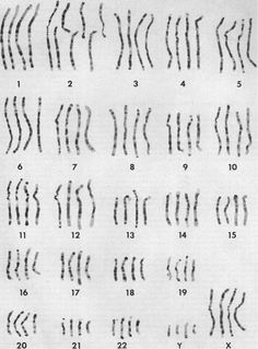 "'The Picture Has Creationists Terrified'--Side-by-side comparison of the chromosomes of humans, chimpanzees, gorillas, and orangutans (from left to right for each chromosome) From JJ Yunis, O Prakash, ""The origin of man:  a chromosomal pictorial legacy"""