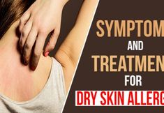 Symptoms And Treatment For Dry Skin Allergies