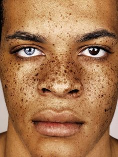 connecting the dots and ​finding beauty in freckles | read | i-D