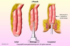 J-pouch using staplers---J-pouch using staplers Rare Disease, Ulcerative Colitis, Colon Cancer, Crohns, Gardner's Syndrome, Surgery, Staplers, Pouch, Ninja