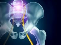 The 4 Causes of All Sciatica - Which Is Causing Your Pain? Sciatic Pain, Sciatic Nerve, Nerve Pain, Relieve Back Pain, Low Back Pain, Upper Cervical Chiropractic, Lumbar Spinal Stenosis, Nerve Anatomy