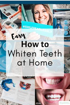 How to Whiten Teeth at Home - Beauty Tips For Women, Look Younger, Science Activities, Teeth Whitening, Self Care, Beauty Hacks, Kids, Lifestyle, Recipes