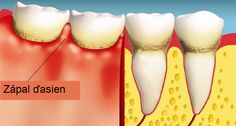 How to Heal Gum Disease - 7 Natural Ways To Overcome This Silent Killer! When it comes to fighting against gum disease, healthy diet is the primary weapon. Gum Disease Cure, Gum Disease Treatment, Gum Health, Oral Health, Teeth Health, Dental Health, Health Tips, Dental Hygiene, Dental Care