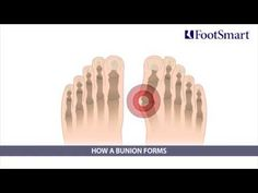 Think you might have a bunion and want relief from the foot pain without surgery? Learn how to treat and prevent them here. FootSmart has the foot health solutions you need, including roomy shoes and footwear, cushions that protect the toe joint and aligners that straighten the big toe.