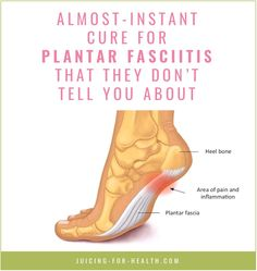 Cure for Plantar Fasciitis - Instant Relief Remedies They Don't Tell You Healing Plantar Fasciitis, Remedies For Plantar Fasciitis, Plantar Fasciitis Treatment, Plantar Fasciitis Shoes, What Helps Plantar Fasciitis, Plantar Fasciitis Surgery, Plantar Fasciitis Stretches, Plantar Fasciitis Symptoms, Natural Health Remedies