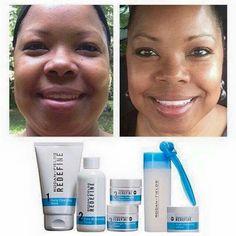 Beautiful, clear, healthy skin! www.nstrauss.myrandf.com