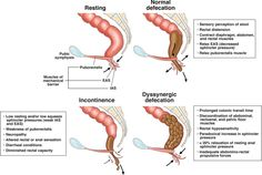 Advances in Diagnostic Assessment of Fecal Incontinence and Dyssynergic Defecation Hernia Repair, Gastroenterology, Perception, Assessment, Disorders, Clinic, Anatomy, Medicine, Muscle