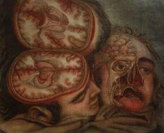 Jacques-Fabien Gautier-d'Agoty (1716-1785). Tête disséquée avec coupe transverse au niveau de l'encéphale. Paris, Gautier, 1748. Estampe en couleurs gravée enh manière noire en quatre plaques