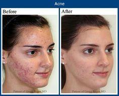 Results in just 2weeks from Rodan and Fields Unblemish skincare....  moniquedavis.myrandf.com