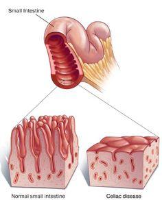 Celiac Disease - What is It?    http://pinterest.com/treypeezy  http://OceanviewBLVD.com