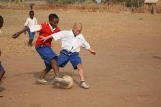 Adolf è affetto da albinismo e questa condizione compromette molto la sua vista. Nonostante questo riesce comunque a giocare a calcio con i suoi amici. Infatti da grande vuole diventare un calciatore famoso!