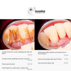 Próby #usuwania #kamienia #nazębnego w warunkach domowych może skończyć się nieodwracalnym uszkodzeniem szkliwa, a nawet części korony zęba. Nie warto ryzykować! W gabinecie dentystycznym profesjonalnie, bezpiecznie i taniej niż myślisz przywrócimy Ci biały uśmiech!
