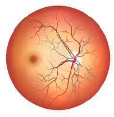 مرض السكري والشبكية,تأثير مرض السكر على شبكية العين , افضل دكتور شبكية في مصر ,تأثير مرض السكر على الشبكية ,مضاعفات ,مرض السكر على شبكية العين ,مرض السكر وتأثيره على شبكية العين , علاج مرض الشبكية السكري ,افضل دكتور شبكية في مصر الجديدة