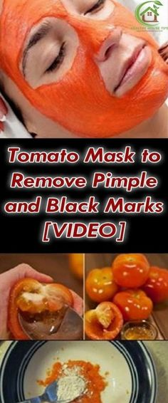 Tomato Mask To Remove Pimple And Black Marks [video]! Tomato Mask To Remove Pimple And Black Marks [video]! Tomato Mask, Belleza Diy, Ovarian Cancer Symptoms, How To Remove Pimples, Shocking Facts, Nutrition, Puffy Eyes, Different Hairstyles, Chinese Medicine