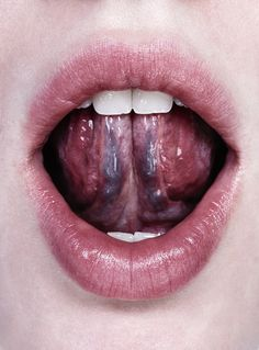 Normal Tonsils -What is normal? How should my tonsils look ...  Normal Tonsils ...