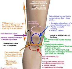 Knee injury graphic.
