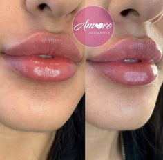 Lip Injections Juvederm, Botox Lips, Dermal Fillers Lips, Face Fillers, Nice Lips, Perfect Lips, Nivea Lip Butter, Lip Surgery, Cosmetic Procedures