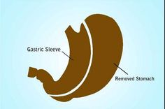 Had mine a couple of years ago and am no longer diabetic!... Advantages of gastric sleeve procedure.  Dr Shillingford in the Fort Lauderdale area is an expert in the field!