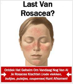 De oorzaken van rosacea is wellicht niet wat je verwacht. Lees hier de échte oorzaken van de chronische huidaandoening - en wat te doen!