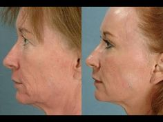 Learn Simple Yoga Facial Exercises And Natural Facial Toning Techniques: Cheek Restoration And Tightening: Using Cheek Augmentation Routines Will Turbo-Charge A Natural Facelift