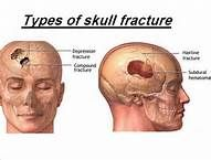 types of skull fractures - Bing Images