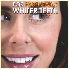 ✨Save Time & Money With This Teeth Whitening Pen! Removes of Coffee, Wine, & Other Stains 😁 Love Handles, Braces Cost, Health And Beauty Tips, Health Tips, Teacher Jokes, Coffee Wine, Whitening Kit, Personal Hygiene, White Teeth